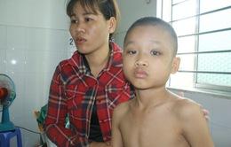 Bị vẹo cột sống, bé trai 10 tuổi có nguy cơ yếu hai chân, ngồi không được
