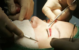 Phẫu thuật thẩm mỹ thay đổi cuộc sống con người như thế nào?