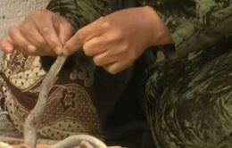 Một phụ nữ Iraq ăn rắn chữa... ung thư