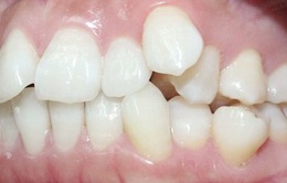 Cách điều trị răng xô lệch tận gốc