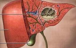 Gia tăng bệnh nhân nhiễm sán lá gan lớn tại Nam Trung Bộ