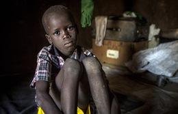 """1/4 trẻ em trên thế giới bị """"đánh cắp"""" tuổi thơ"""