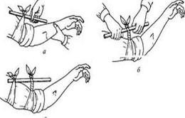 Cách sơ cứu khi bị rắn độc cắn