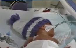 Phương pháp mới chẩn đoán bệnh ở trẻ sinh non