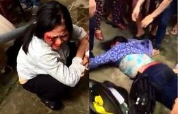 Vụ hành hung 2 phụ nữ bán tăm: Triệu tập nhiều người liên quan