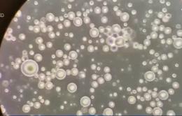 Video sữa mẹ dưới kính hiển vi thu hút hàng triệu lượt xem