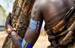 Nhức nhối nạn tấn công tình dục ở Nam Sudan