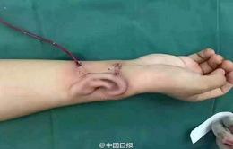 Trung Quốc: Cấy ghép thành công tai nhân tạo phát triển trên cánh tay