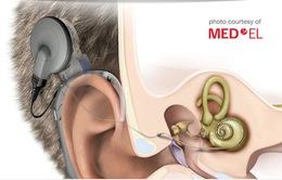 Vì sao người khiếm thính từ chối cấy ghép ốc tai?