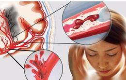 Xạ hương - Công dụng trong điều trị tai biến mạch máu não