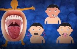 Phòng bệnh tay chân miệng không đơn giản như bạn nghĩ