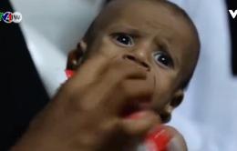 Bi kịch của những đứa trẻ tại Yemen