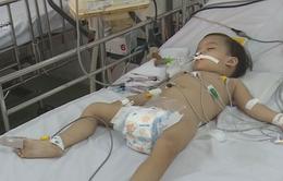 Nhiều trẻ mắc bệnh vì không tiêm vaccine đầy đủ