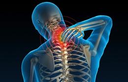 Đau đầu, chóng mặt, mất ngủ - Triệu chứng của thoái hóa đốt sống cổ