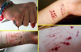Tự làm đau bản thân là hành vi tự sát