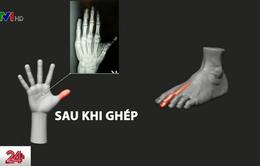 Kỹ thuật cấy ghép ngón chân thành ngón tay cái