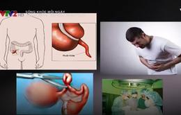 Viêm ruột thừa và cách xử trí