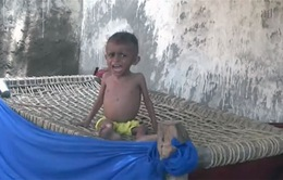 Phó Tổng Thư ký LHQ cảnh báo Yemen sắp sụp đổ toàn diện