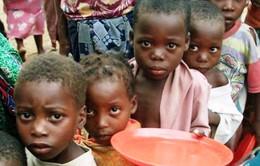 Những đứa trẻ thiếu ăn kiếm sống trên đường phố Yemen