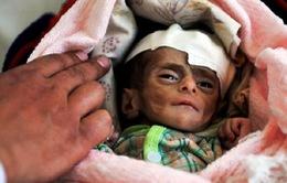 Trẻ em Yemen suy dinh dưỡng nghiêm trọng