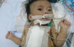 Xót xa bệnh nhi 2 tháng tuổi sống chung với máy thở oxi