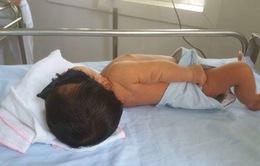 Trẻ sơ sinh vàng da phải thay máu hoàn toàn