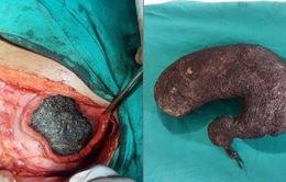 Phẫu thuật lấy búi tóc nặng 1kg trong dạ dày bé gái 6 tuổi