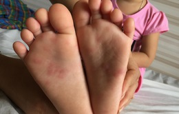 Bệnh tay chân miệng vẫn diễn biến phức tạp