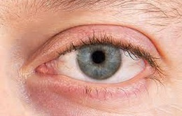 Bệnh khô mắt có nguy hiểm không?
