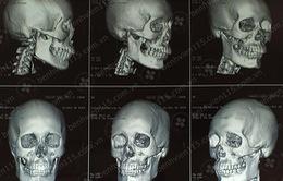 Bị giật túi xách: Một cô gái tử vong do chấn thương sọ não