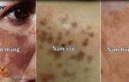 Điều trị nám da ở phụ nữ