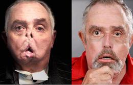 Ca phẫu thuật ghép mặt cho bệnh nhân cao tuổi nhất thế giới