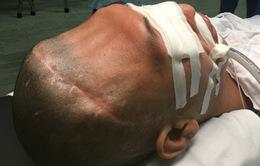 Bắc Giang: Phát triển kỹ thuật ghép khuyết sọ cho bệnh nhân