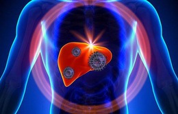Chuyên gia Bệnh viện K chỉ cách phát hiện sớm ung thư gan
