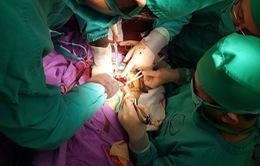 Cận cảnh khối u đe dọa tính mạng bệnh nhân bị ung thư buồng trứng