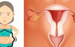 U nang buồng trứng có dẫn đến ung thư?
