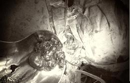 Cắt khối u trung thất khổng lồ nằm im 10 năm trong lồng ngực người phụ nữ