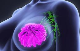 Ung thư vú ngày càng trẻ hóa