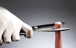 Có thể tự cắt bao quy đầu tại nhà?