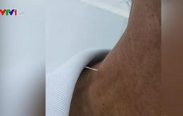 Hãi hùng xương cá đâm xuyên thực quản cụ ông 61 tuổi