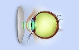 Bệnh tiểu đường ảnh hưởng đôi mắt thế nào?