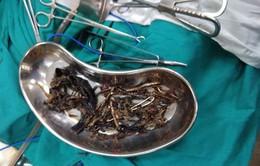 Tìm thấy 1,5kg kim loại trong dạ dày một người phụ nữ Ấn Độ