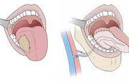 Dấu hiệu ung thư lưỡi mà bạn dễ dàng bỏ qua