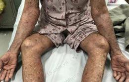 Tự ý dùng thuốc trị bệnh gout, cụ bà bị đỏ da toàn thân