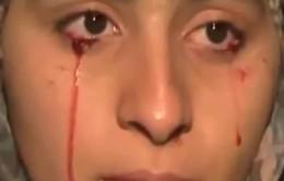 """Kỳ lạ căn bệnh """"khóc ra máu"""""""
