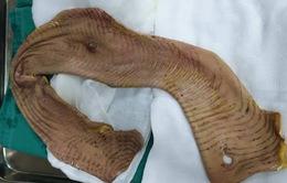 Nam thanh niên bị máy bóc vỏ gỗ lột toàn bộ da cánh tay