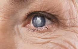 """Hiện tượng """"ruồi bay"""" ở mắt có nguy hiểm không"""