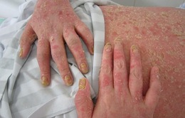 Viêm khớp vảy nến: Bệnh cần được chăm sóc đa chuyên khoa