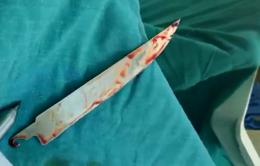 Lấy lưỡi dao nằm trong phổi bệnh nhân 10 ngày