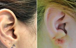 Rách dái tai và điều trị thẩm mỹ
